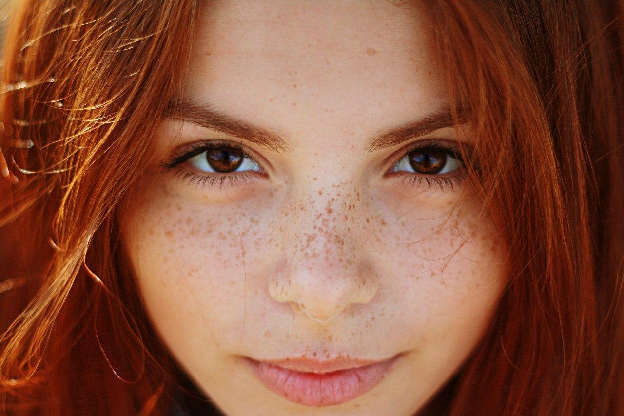 freckles web